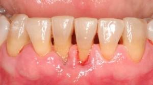 Periodontologia-odontiatriko-Peiraia