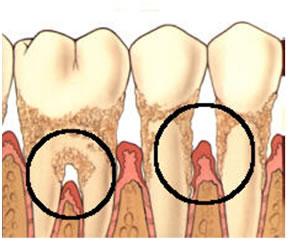 periodontologiko-odontiatriko-Peiraia