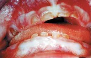 Νήπιο 20 μηνών με παραμορφωμένους κοπτήρες, μεγάλη καταστροφή των δοντιών και καφέ χρώση αυτών