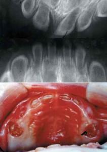 Βρέφος 8 μηνών με βαρειά οστεοπώρωση της οδοντοστοιχίας και λεπτή οδοντίνη