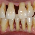 dontia-diavitis-odontiatriko-kentro-peiraia