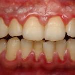 dontia-diavitis-odontiatriko-kentro-peiraia2