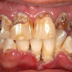 dontia-diavitis-odontiatriko-kentro-peiraia3