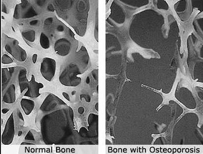 Εμφάνιση-στο-μικροσκόπιο-οστού-υγιούς-και-οστεοπορωτικού.