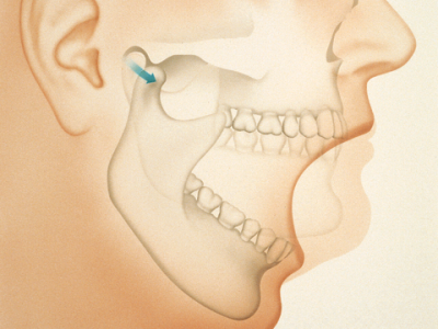 osteoporosi-gnathou-Odontiatriko-kentro-Peiraia2